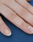 De ce apar petele albe pe unghiile tale