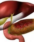 Cum influenteaza erorile de alimentatie aparitia pancreatitei