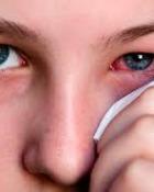 Ce afectiuni pot semnifica ochii inrositi si cum ne protejam?