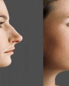 plastic-surgery-graphic-design.jpg
